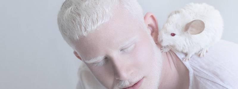 il-bello-di-essere-diversi-albinismo-2