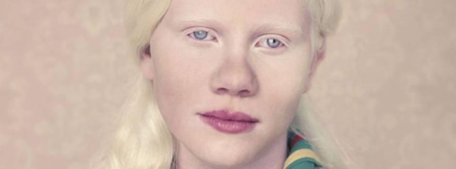 il-bello-di-essere-diversi-albinismo-header