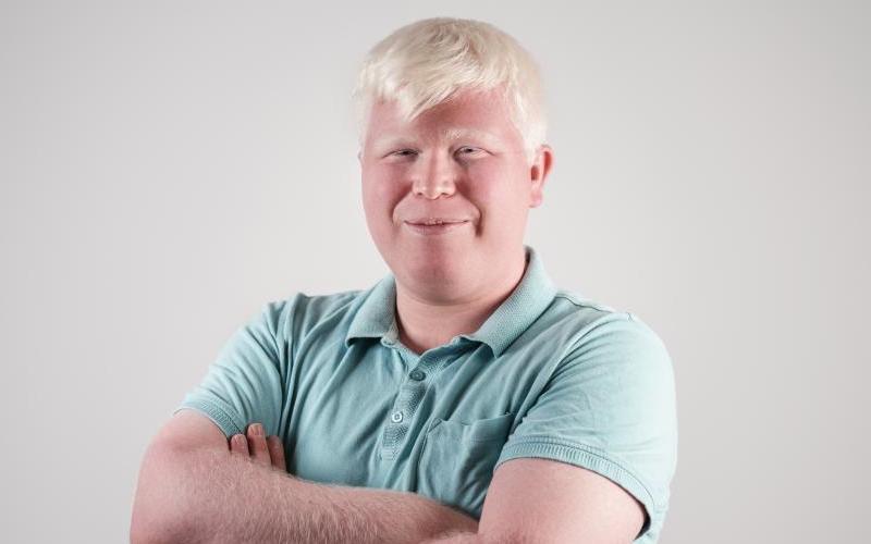 L'Albinismo
