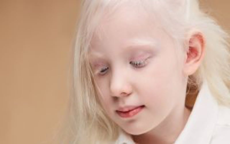 albinismo- header-1